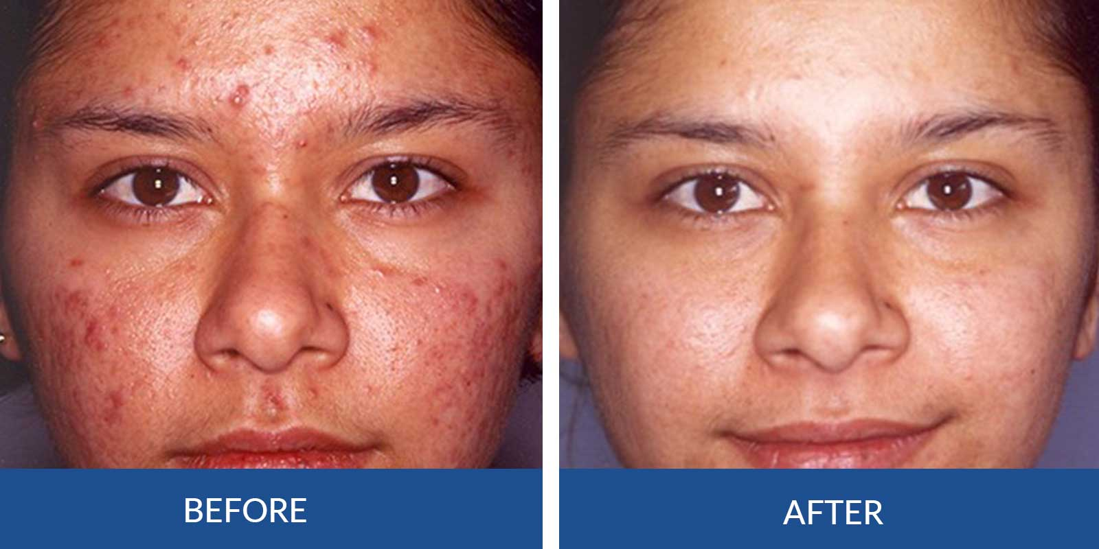 Acne-1-2-Before--afterTreatment