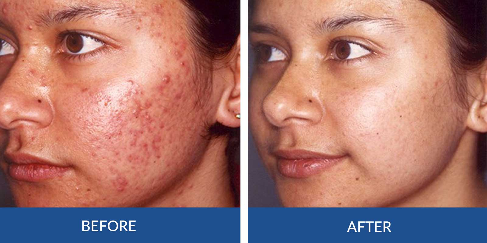 Acne AA-3-4-Before-after-Treatment