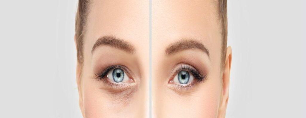 Have you ever considered Laser Eyelid Surgery?