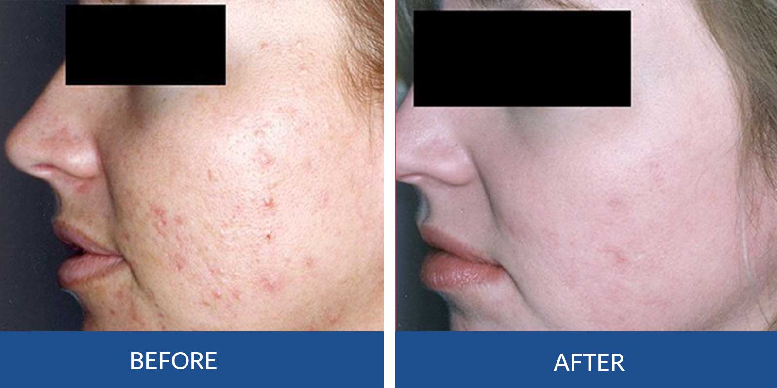 Acne BB-1-2-Before-after-Treatment