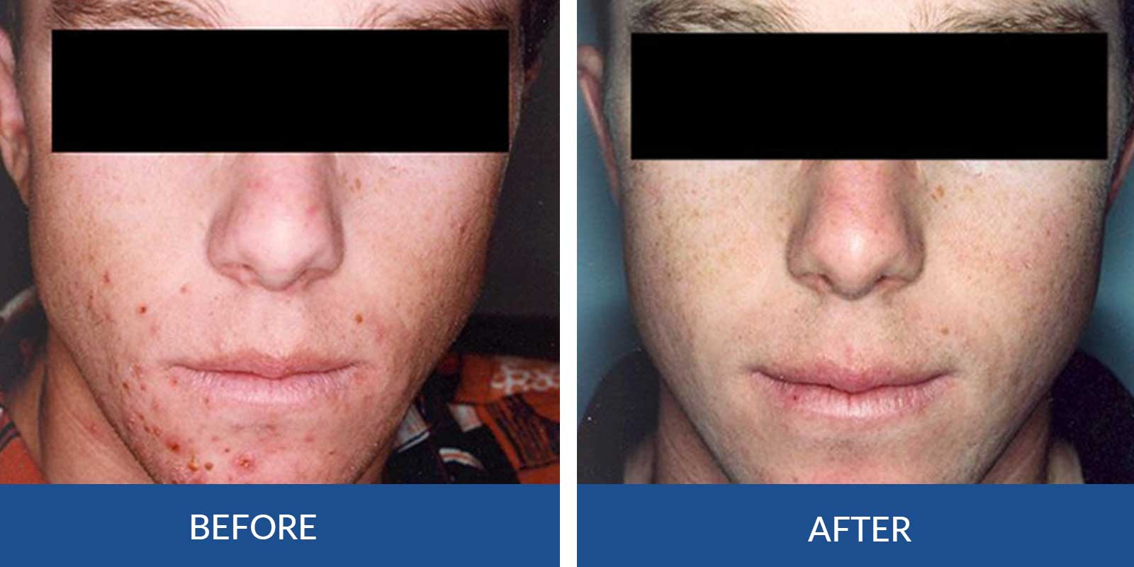 Acne CC-1-2-Before-after-Treatment