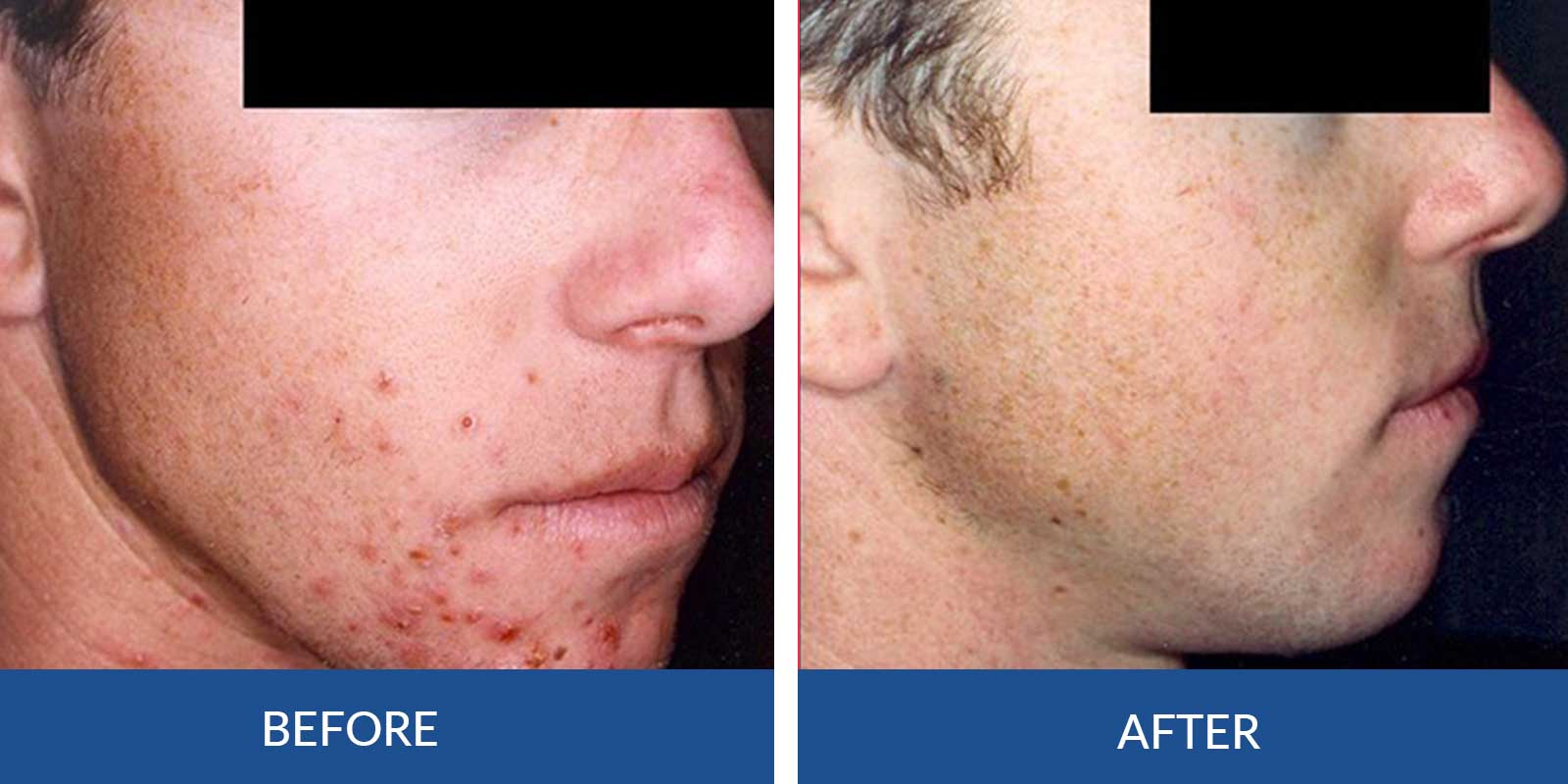 Acne CC-3-4-before-After-Treatment