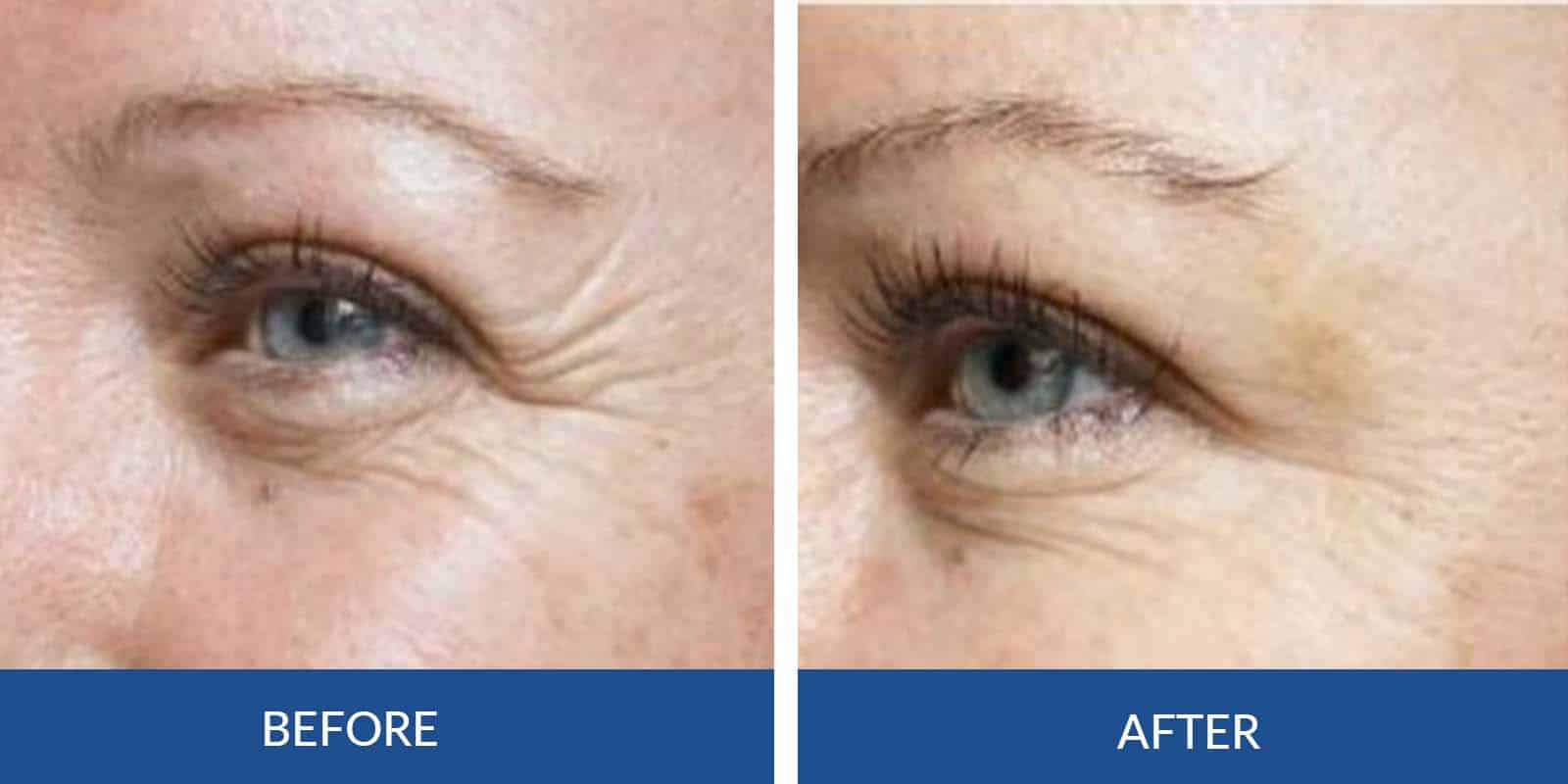 Crows Feet before After (1)