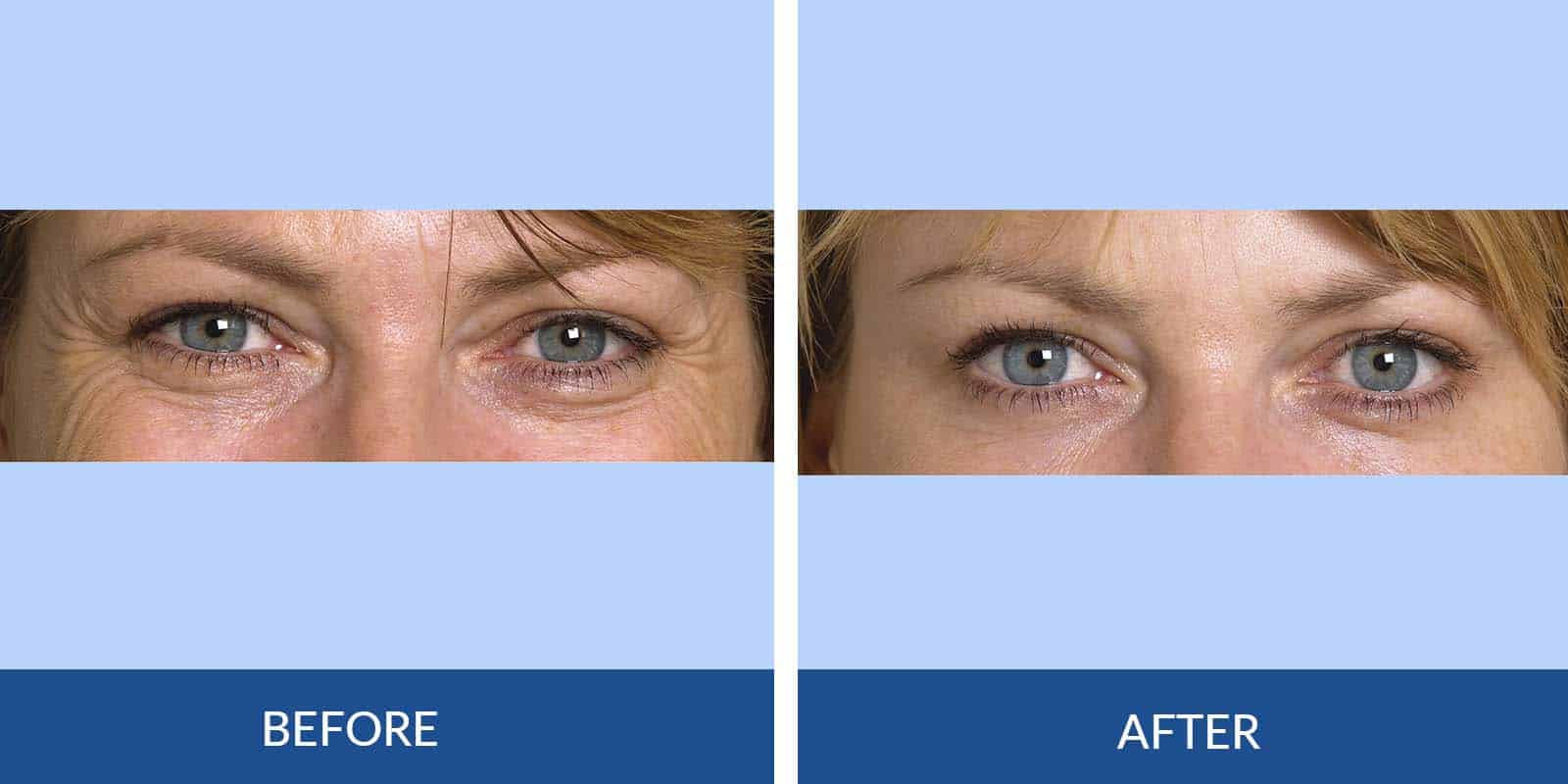 Crows Feet before After (2)