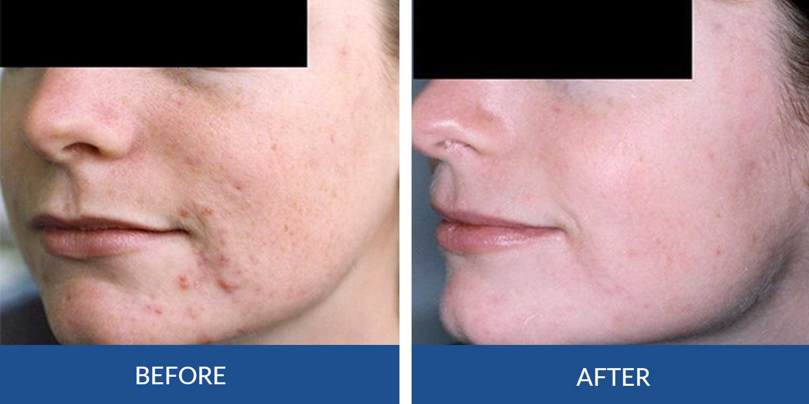 Acne DD-1-2-before-After-Treatment