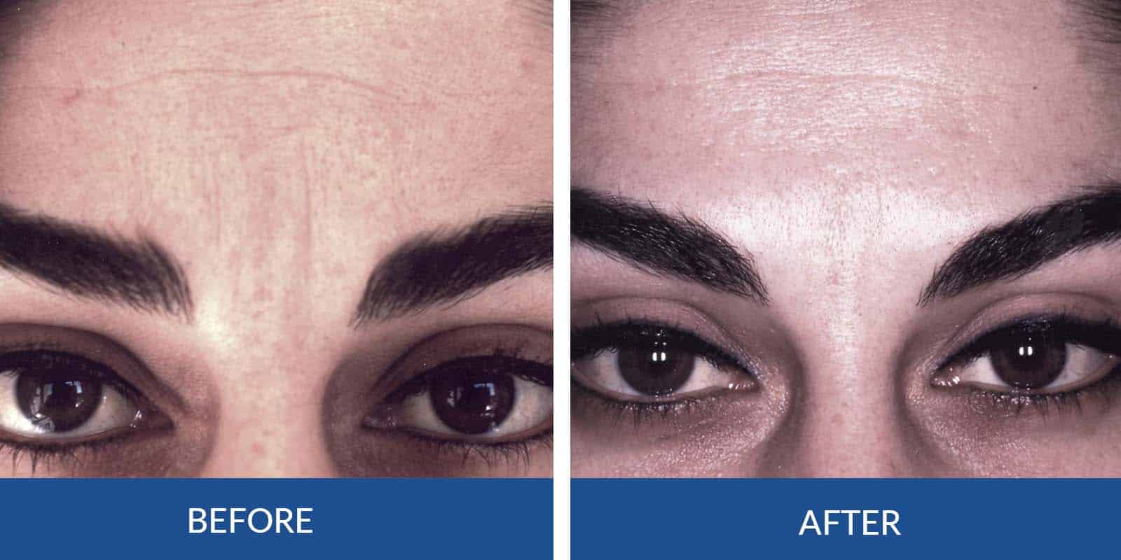Frown Lines before After (3)