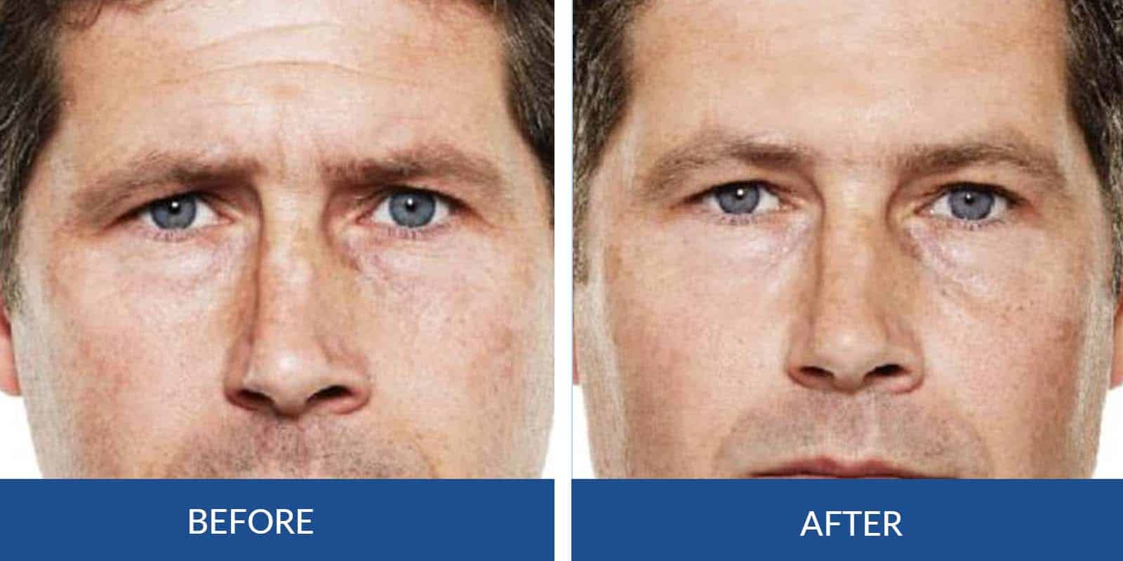 Frown Lines before After (5)