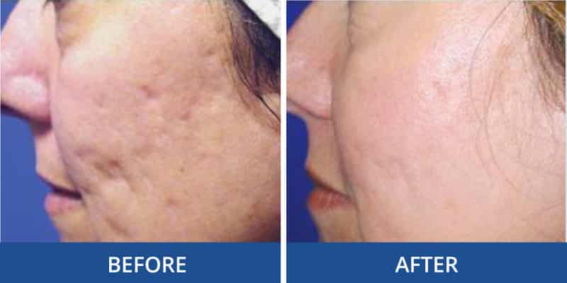 acne-scarring-before-after