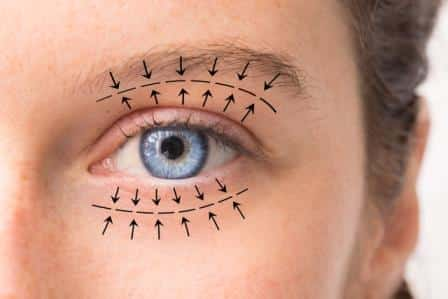 how eyelid surgery is performed