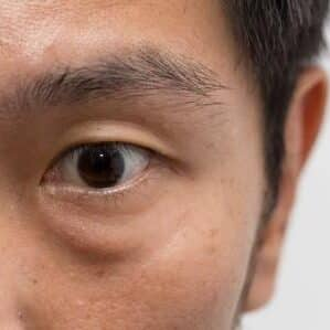remove lower eyelid bags